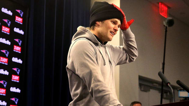Report: Tom Brady Needed Four Stitches in Hand--IMAGE