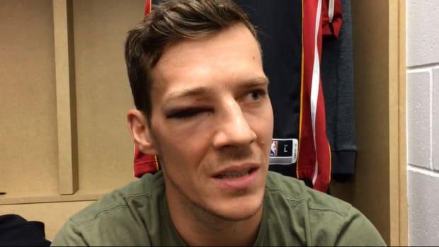 goran-dragic-eye-injury-black.jpg