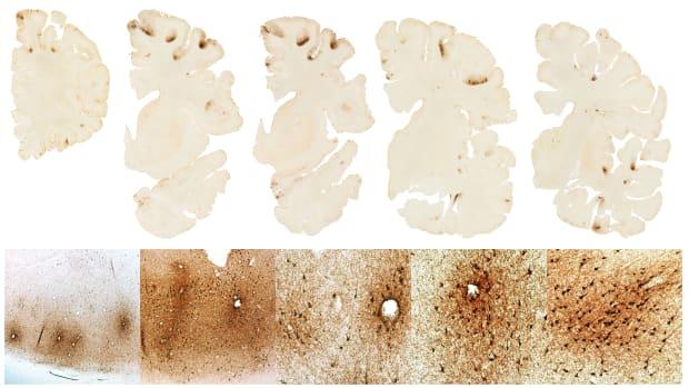 aaron-hernandez-brain-photo-cte.jpg.jpg