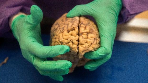 Boston University Researchers Could Diagnose CTE in Living Patients--IMAGE