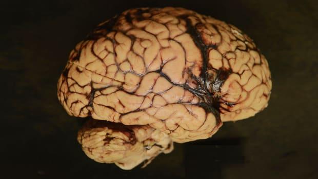 nfl-cte-brain.jpg