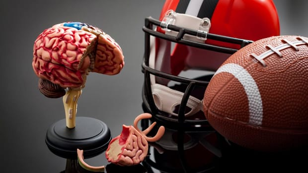 Boston University Study Finds CTE In 110 Of 111 Brains of Former NFL Players  IMAGE