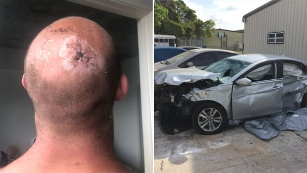 Professional wrestler Dan Matha's injured head after a car crash sent him through his windshield