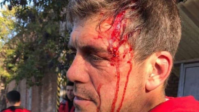 "IMPACTANTE | El violento ataque a un DT argentino en un intento de robo: ""Pensé que me mataban"""