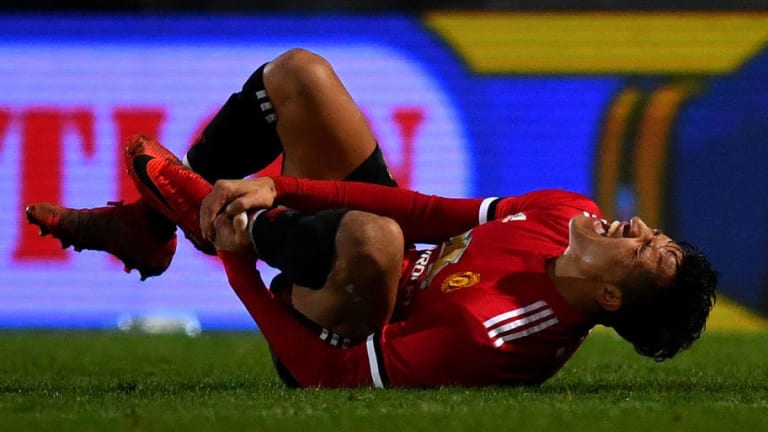 """TREMENDO   """"Bautizaron"""" a Alexis Sánchez con tremenda patada en el United"""