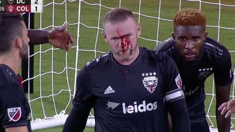 DRAMÁTICO: Wayne Rooney terminó el juego ante los Rapids bañado en sangre