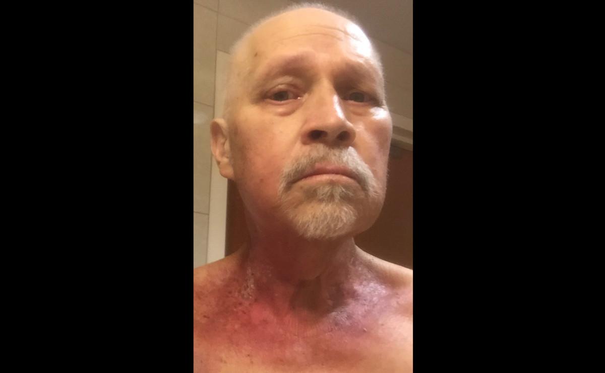 Mortensen's radiation treatment caused burns around the neck.