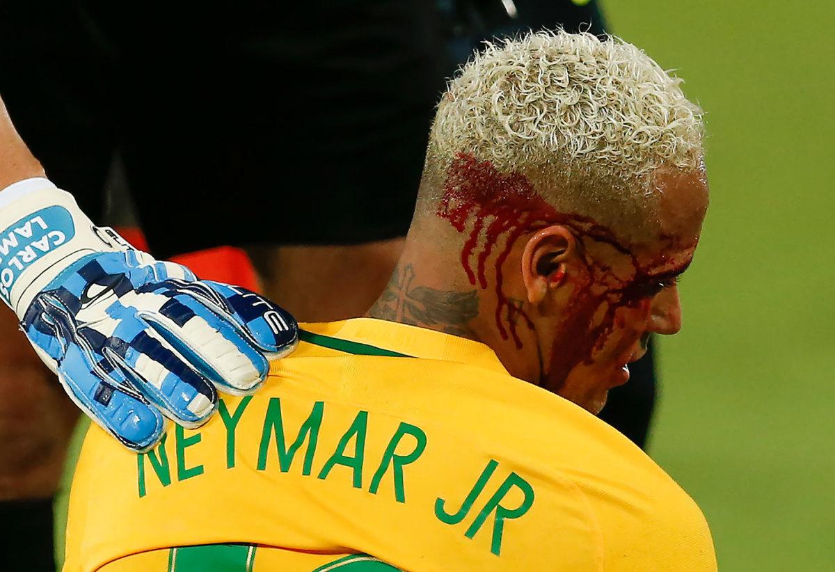 2016-1007-Neymar-bleeding.jpg