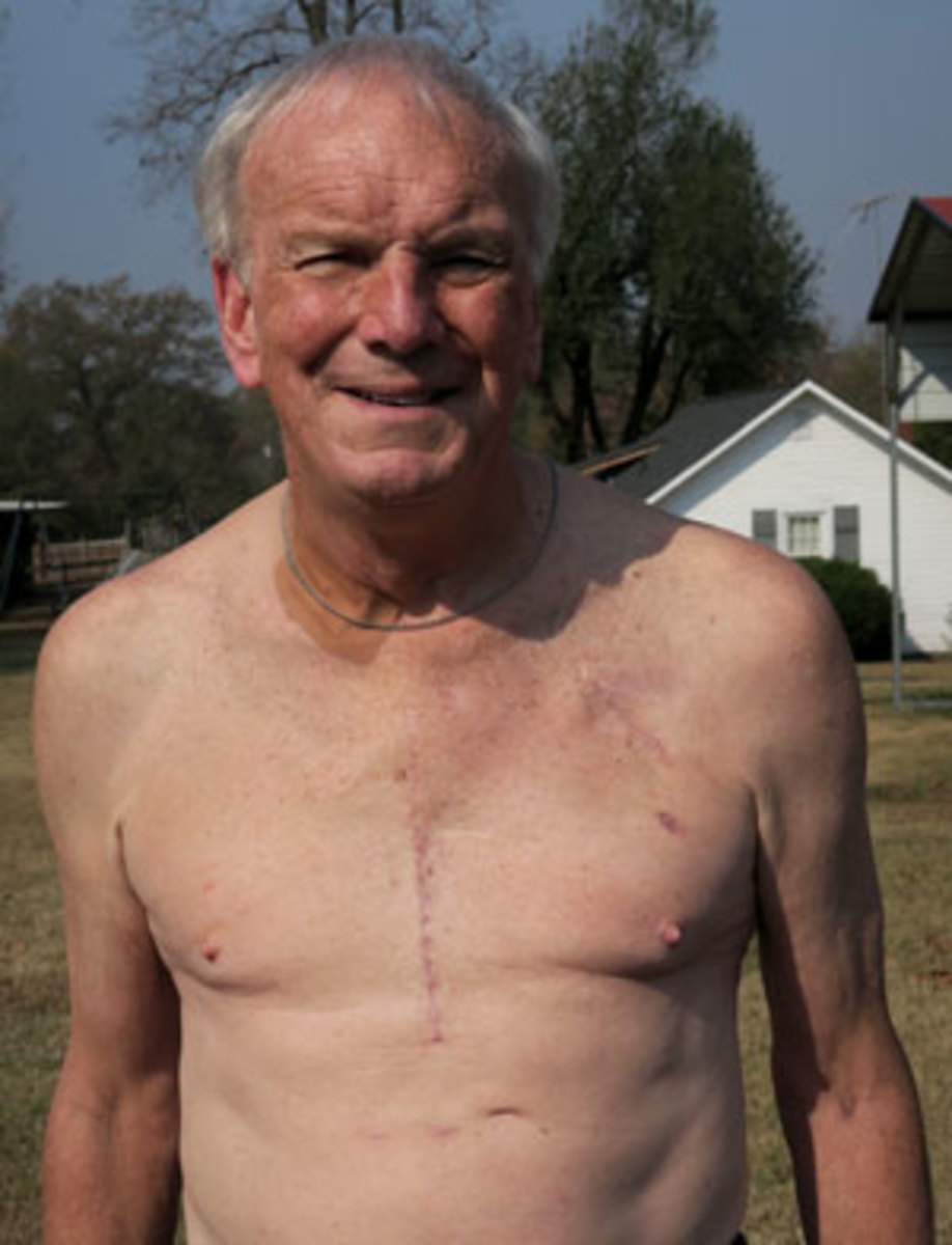 Wyche shows off his scar following heart transplant surgery.