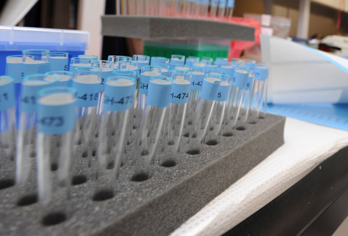 HGH testing at a lab in Vancouver.