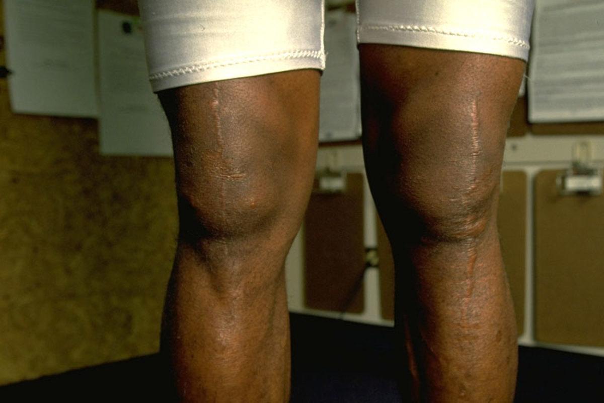 turf-wendell-davis-knees.jpg