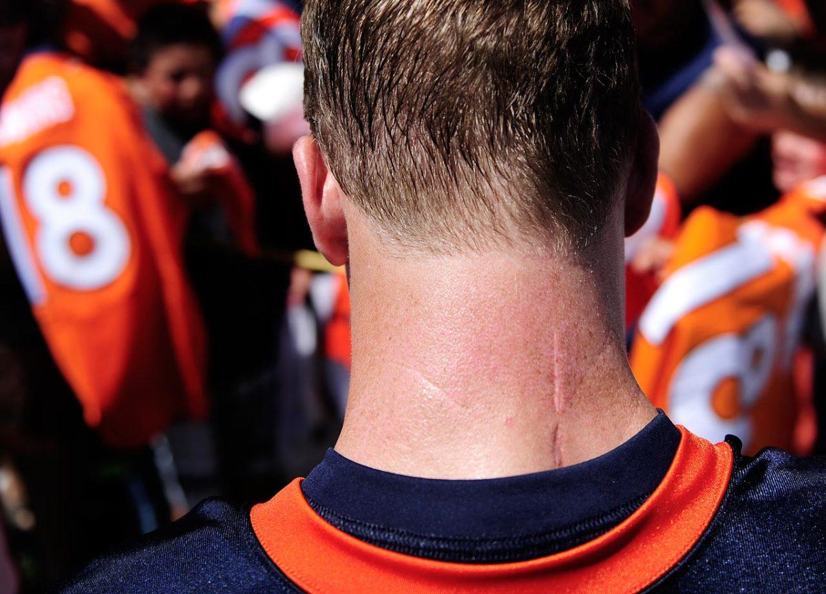 2012-Peyton-Manning-neck-scar.jpg