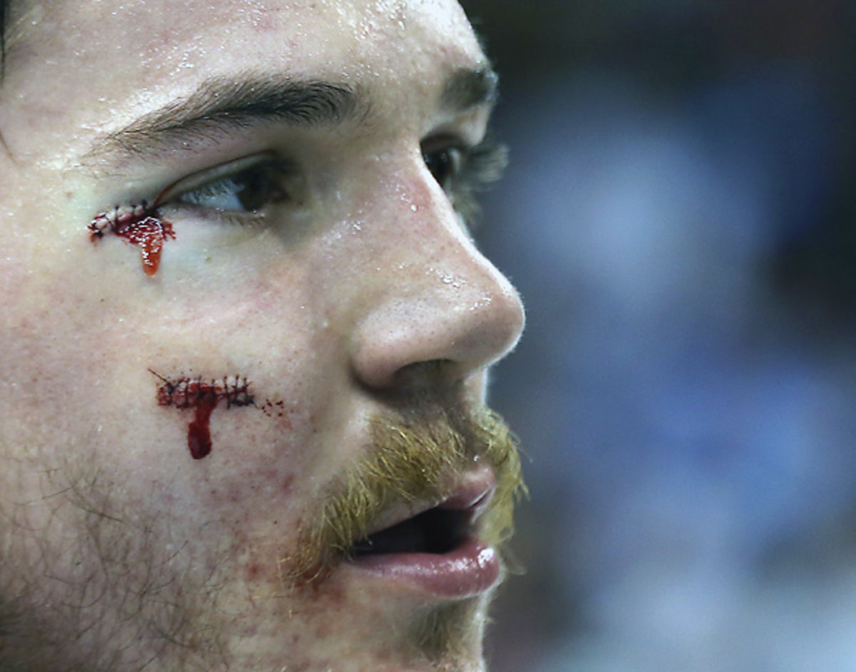 You know you want to bid on Andrew Shaw's stitches, right?