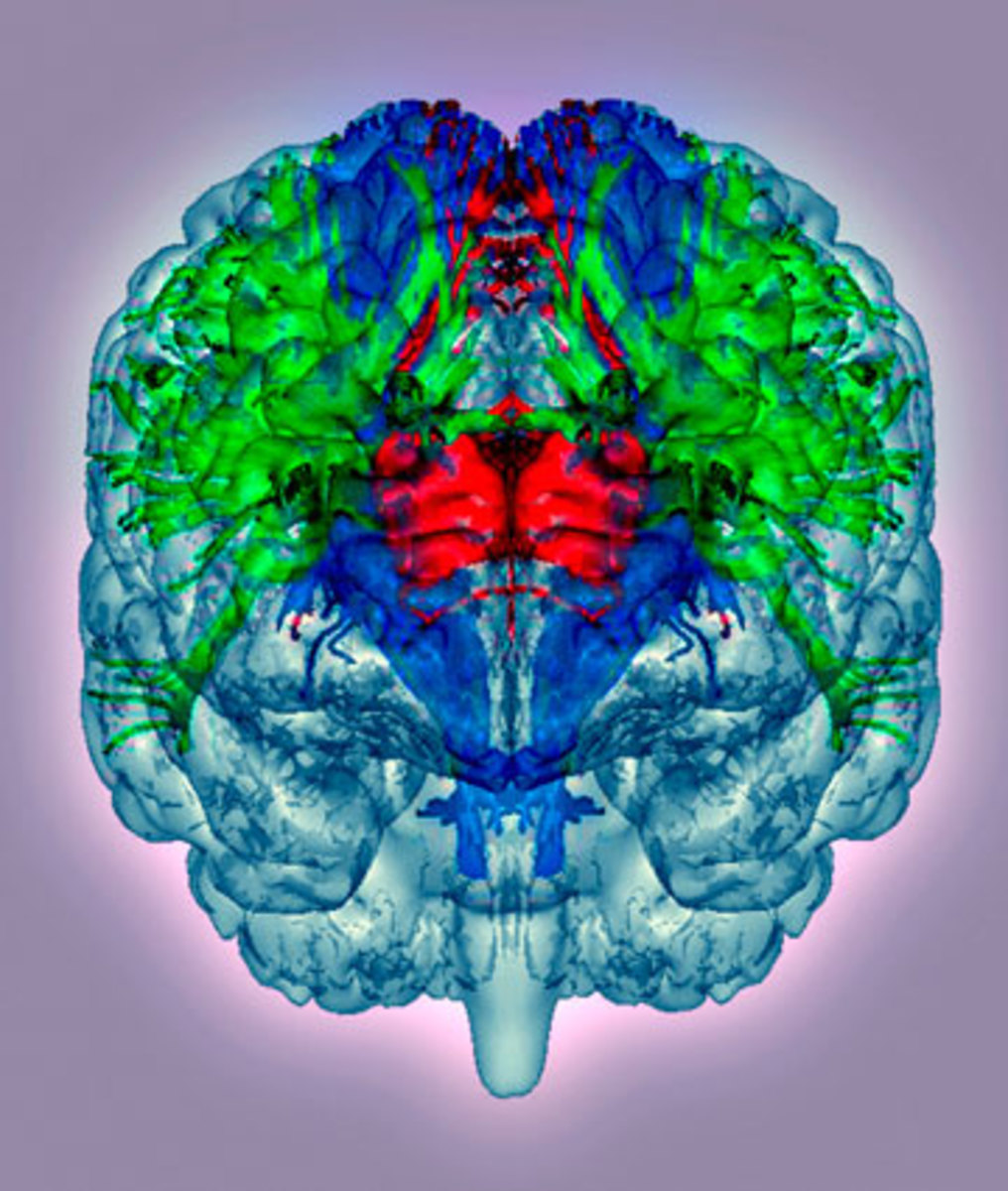 Diffusion tensor imaging could reveal in real time what is happening inside the brain—much more effectively than MRIs and CT scans do now. (Getty Images/Science Photo Library RM)