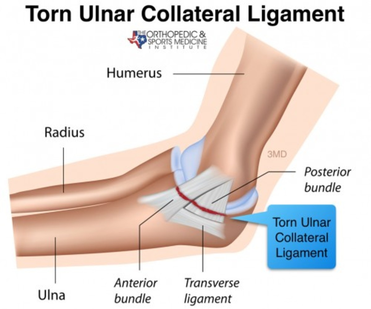 Elbow surgery may be common now, but there was nothing humerus about it in 1974.