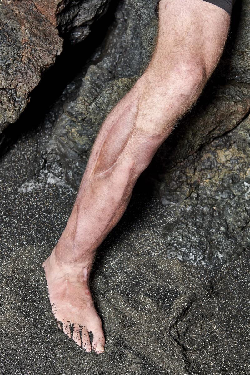 Alex Smith's injured right leg